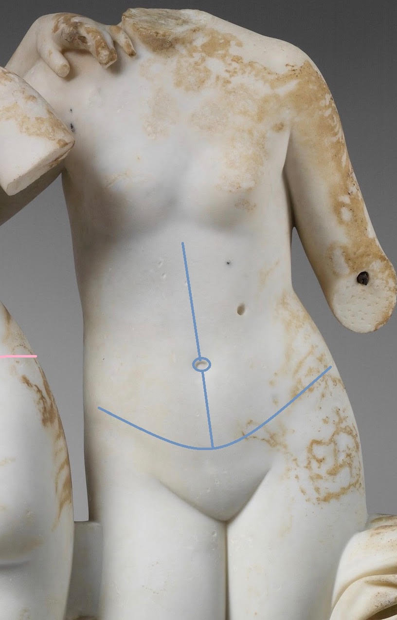 abdominoplasty-image2